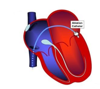Боли в области сердца аритмия